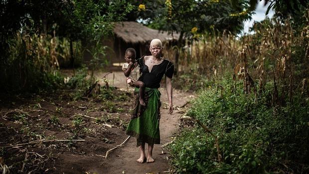 Foto de recurso: Los ataques contra albinos, a los que se atribuyen poderes mágicos, han aumentado