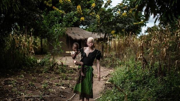 Albina africana, una raza que sufre continuos ataques