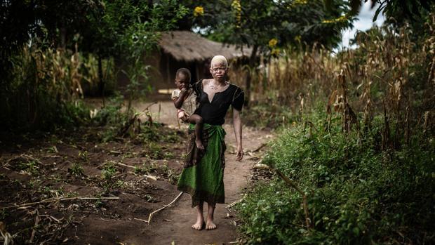 Una mujer albina posa con su hija en Malaui, donde las personas con albinismo son asesinadas y despedazadas