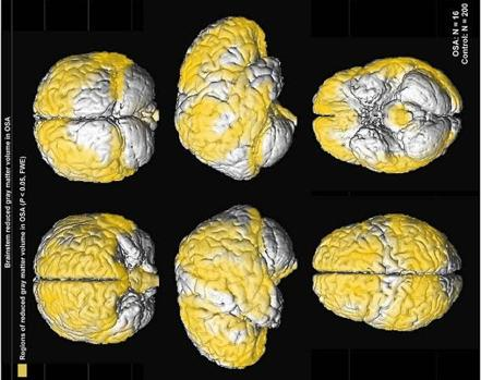 Reducción de la sustancia gris en el tronco del encéfalo por la apnea del sueño
