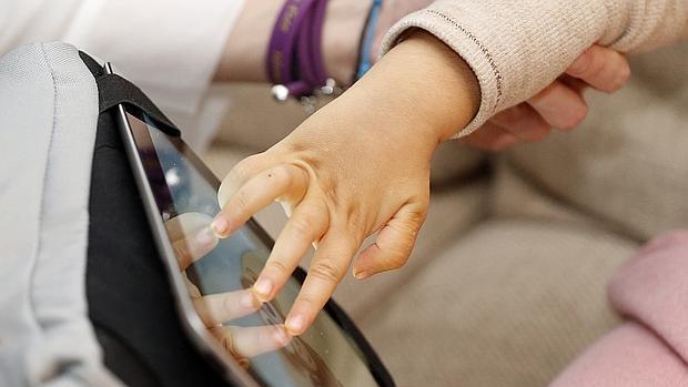 Ciertos movimientos de la mano que son típicos del síndrome de Rett